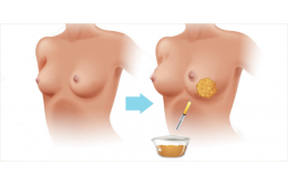 Понимание плюсов и минусов липофилинга  при увеличении груди