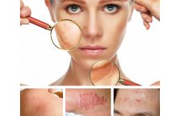 5 самых распространенных кожных заболеваний, И как с ними бороться