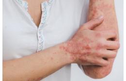Псориаз: симптомы, причины, методы лечения и перспективы