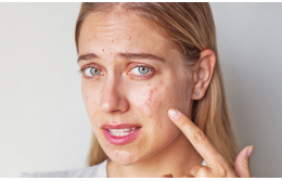 Все, что вам нужно знать о гормональных акне и как их лечить