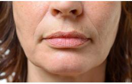 Как избавиться от линий и морщин вокруг губ